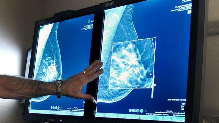 FDA-Tightens-Mammogram-Regulations-Women-Dense-Breasts-RM-722x406
